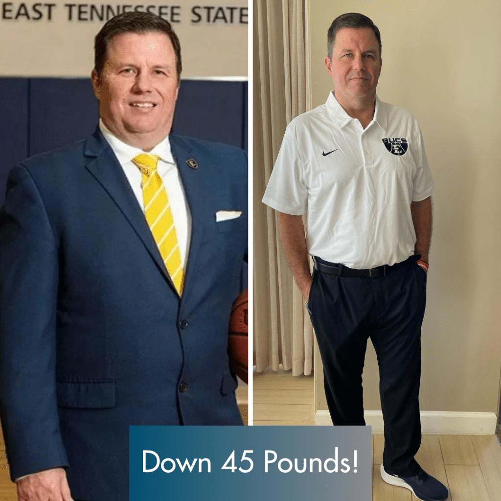 Before and after photos of man in suit